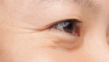 眼部细纹怎么去除 使用按摩仪能去除眼部细纹吗