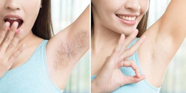 原创脱毛竟留下这些危害,用好3招安全脱毛,最后一种比较痛