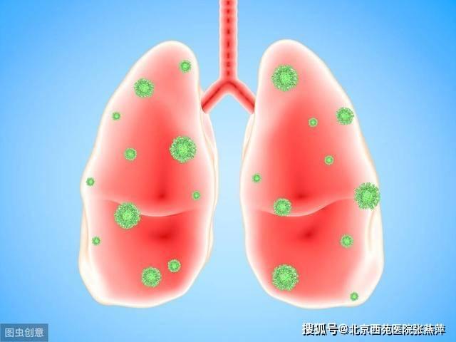 你相识肺炎吗?5类经典肺炎的症状与治疗建议,全面汇总