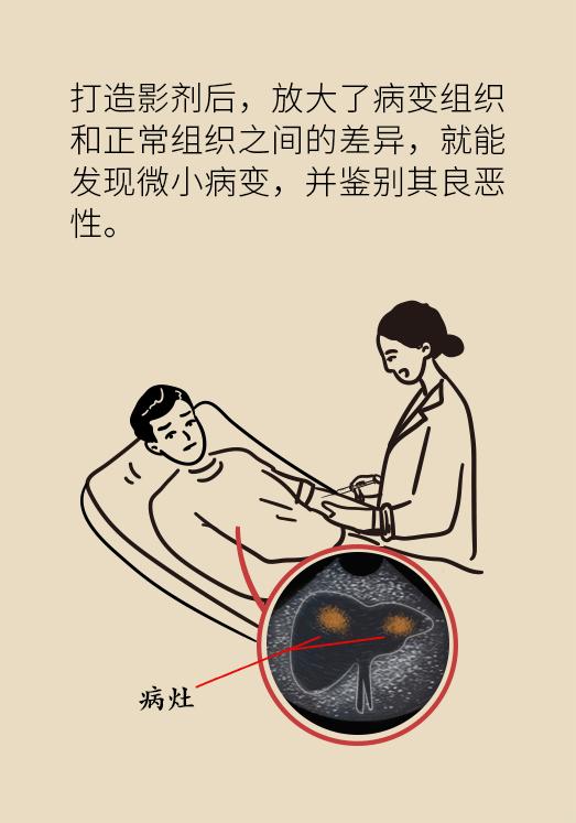 体检发现肝脏有个小结节,良性还是恶性?这个检查最靠谱