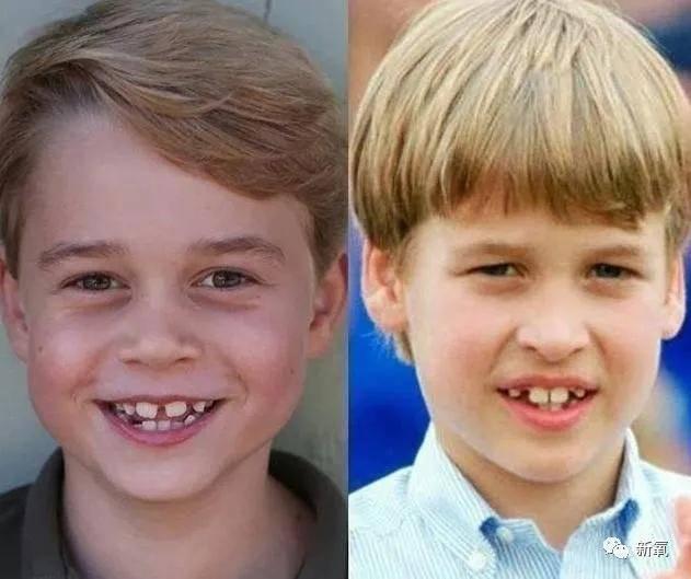 """原创龅牙是皇室的标配?""""突出""""的贵气是这么来的?!"""