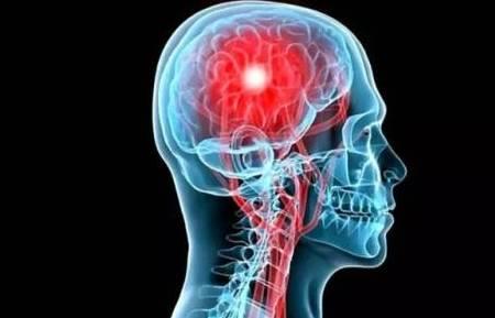脑血栓泛起身体会发生这6个症状,中暮年人,要当心了