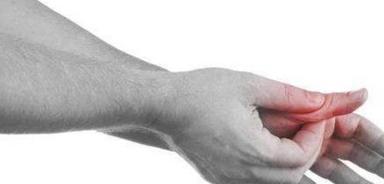 痛风患者的原理_痛风患者图片