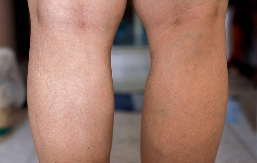 """血内有栓,腿部先知?腿部出现4个表现,暗示血管已严重""""拥堵"""""""