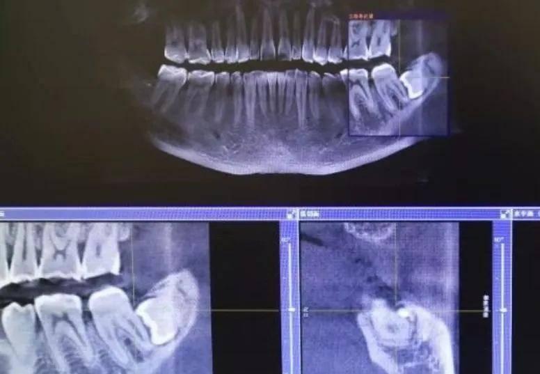为什么看牙要拍片?担心辐射问题?  第6张