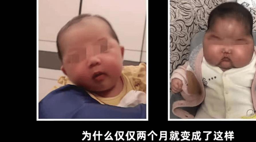 """劣质宝宝""""抗菌膏""""曝光,宝宝完成了""""大头娃娃"""",家长还在买"""