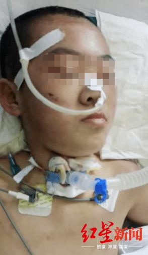 恒耀平台注册山西怀仁12岁女童疑遭继母虐待致脑梗死,检方提前介入 (图2)
