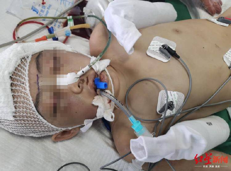 恒耀平台注册山西怀仁12岁女童疑遭继母虐待致脑梗死,检方提前介入 (图4)
