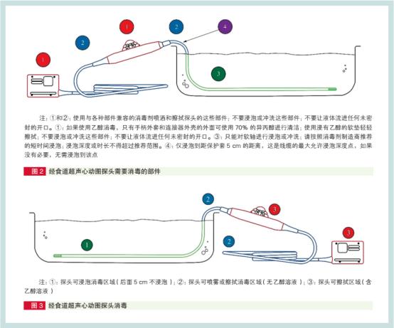 中国经食道超声心动图探头清洗消毒指南出炉