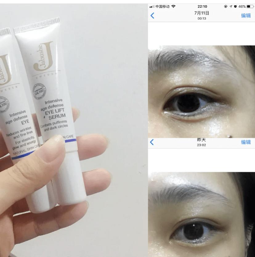 瑞典33位女性经3个月实测:变态眼霜把70岁奶奶的眼纹淡化了,还消水肿