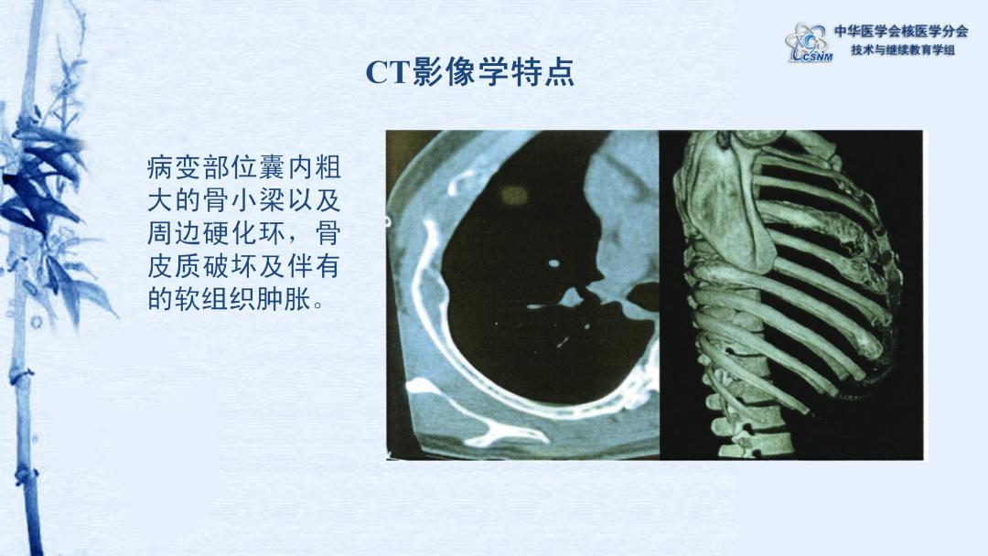 全身骨显像的原理_全身骨显像检查