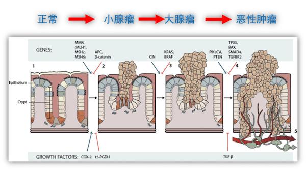 肠道菌群致癌实锤!Nature新子刊报道首个菌群依赖的自发结直肠癌小鼠模型