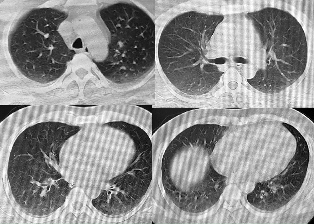 援非日记|第234天,请放心,胸部CT没有发现新冠肺炎病灶