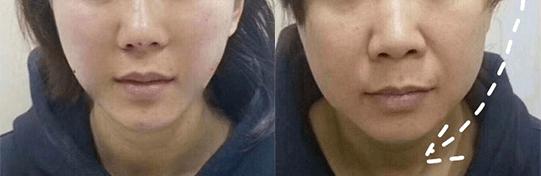 这个比瘦脸针还好用的好物,既消水肿又提拉紧致,立变小V脸!