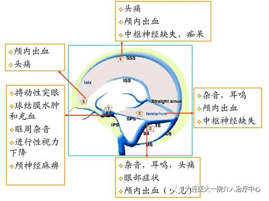 阿司匹林治疗脑动脉硬化的原理_阿司匹林肠溶片