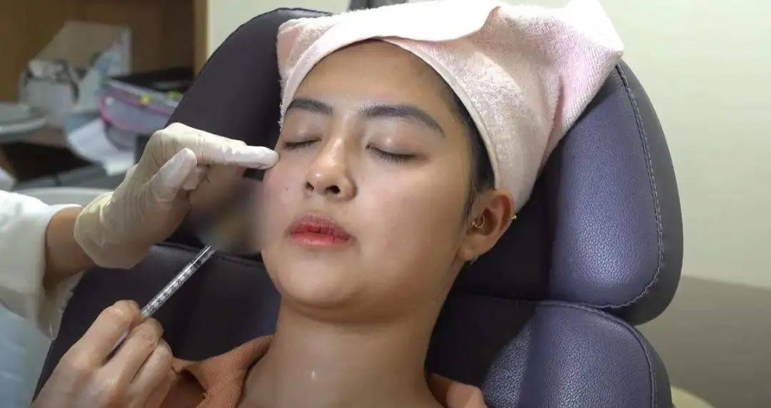 一位女性在韩国接受干细胞整容手术