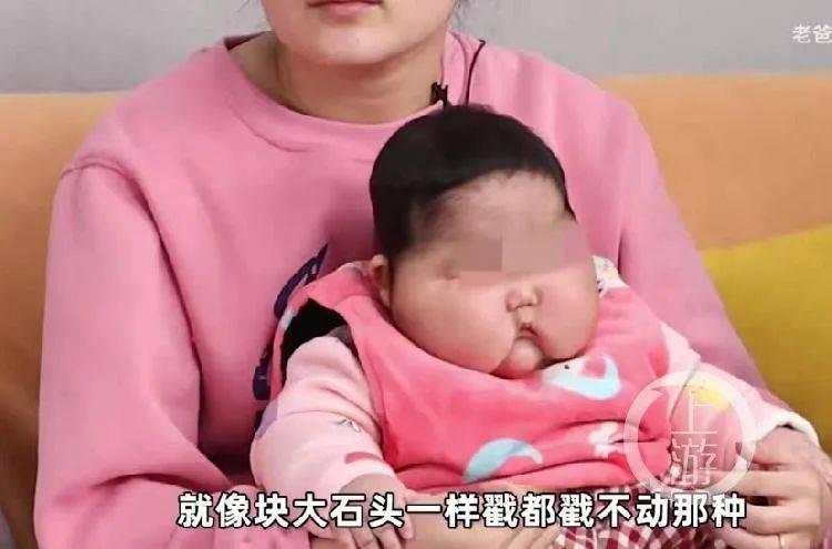 """5个月女婴抹抑菌霜后变""""大头娃娃""""?厂商质疑家长炒作!官方通报来了→  第8张"""