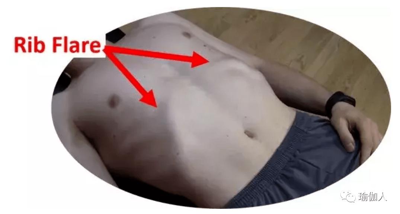 突出的肋骨很性感?错!其实它叫肋骨外翻