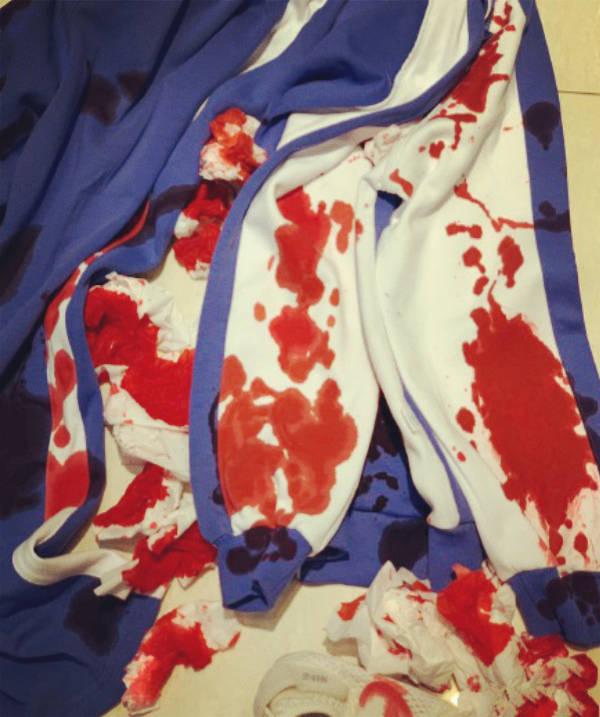 6岁哮喘女孩遭老师体罚吐血事件:恶师横行,为何家长也是帮凶?