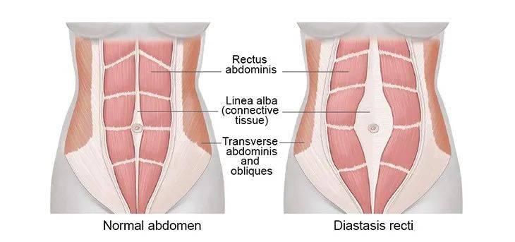 腹直肌分离恢复训练动作,什么是腹直肌分离插图(3)