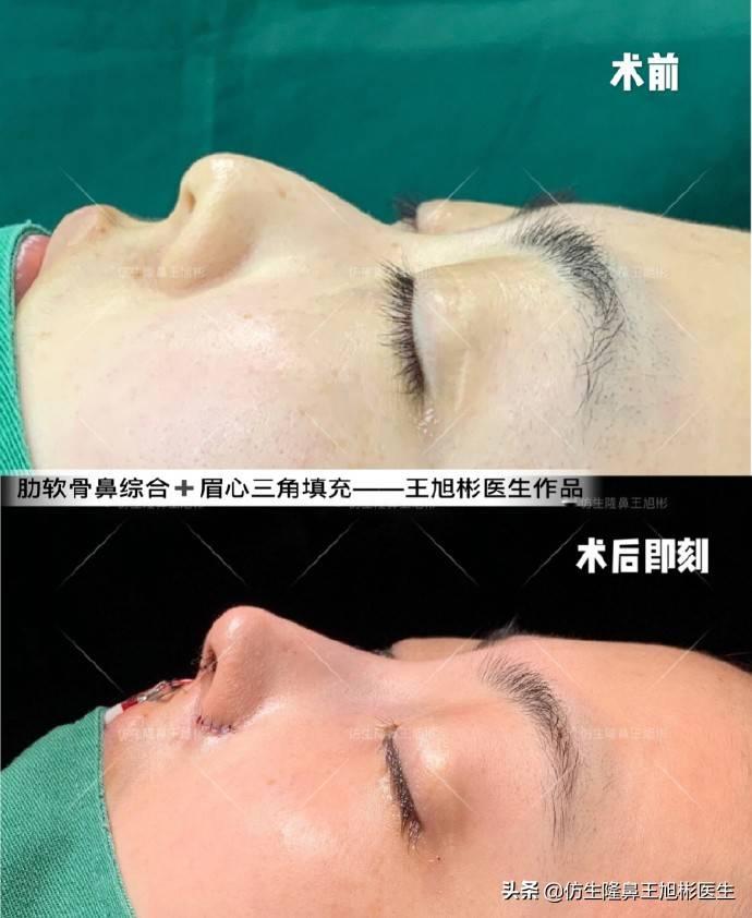 鼻头变小多少钱(缩小鼻子手术安全吗)插图(11)