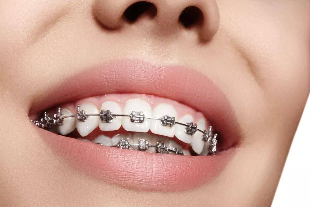 牙套多少钱一副(矫正牙齿贵吗)插图
