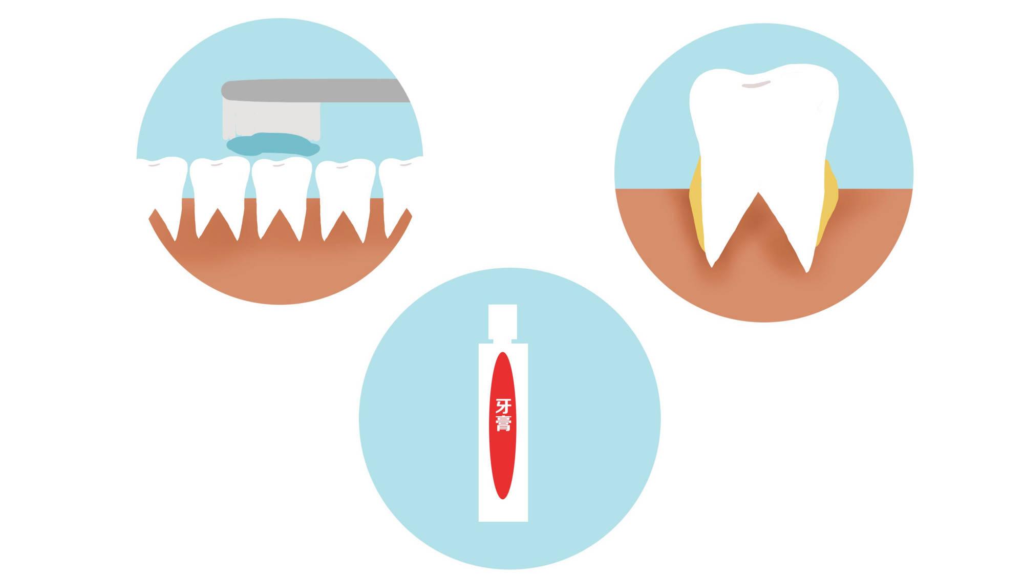 用牙线好吗(用牙线有什么作用)插图(2)