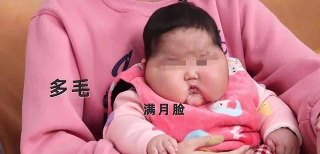 """又见""""大头娃娃""""?劣质婴儿霜影响孩子身体健康,选购产品需谨慎"""