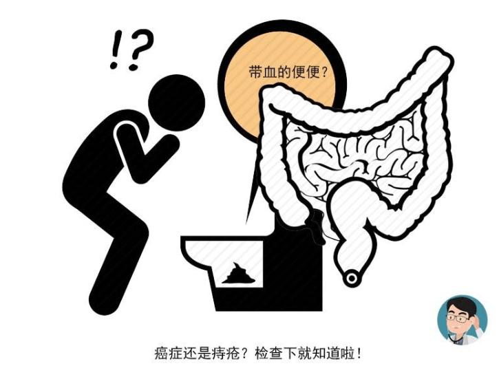 大便若出现4个标志,或说明体内有癌变的信号,需尽早就医检查!
