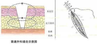 减张缝合:减少瘢痕的关键技术