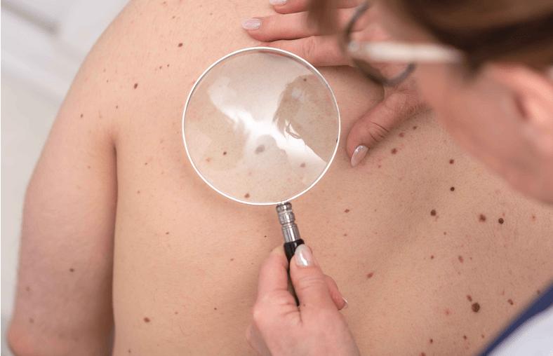 糖尿病患者,多留意皮肤的表现,若有2个症状,警惕肾衰竭