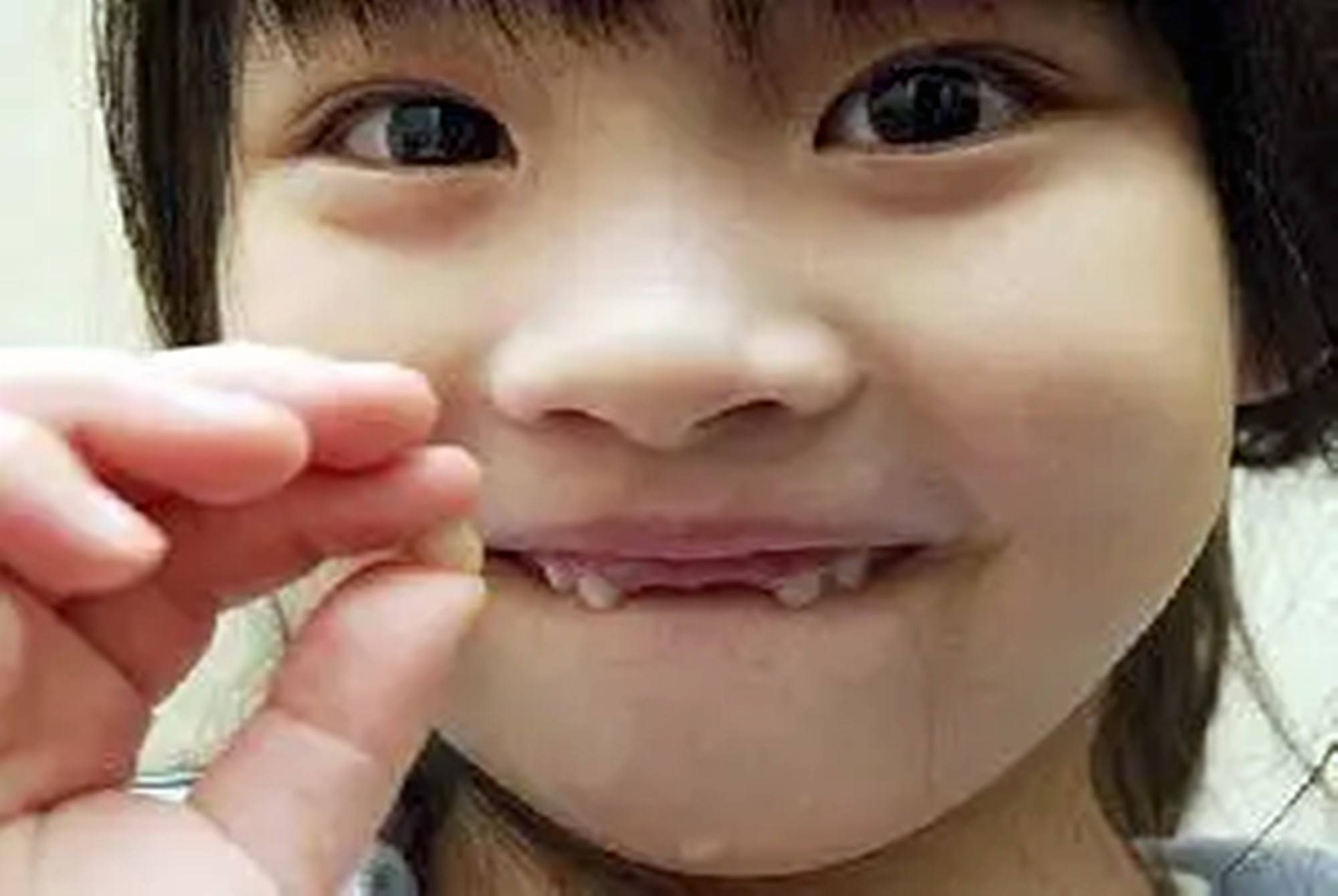 """孩子的乳牙其实是""""救命牙""""?家长先别急着扔,关键时刻真能用上"""