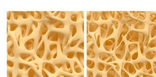 60岁以上女性半数骨质疏松 提前补充3种营养 正确预防骨质疏松-家庭网