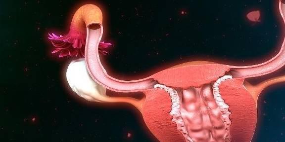 子宫|生完二胎后,女人该如何长期避孕?这3个方法,总有一个适合你!