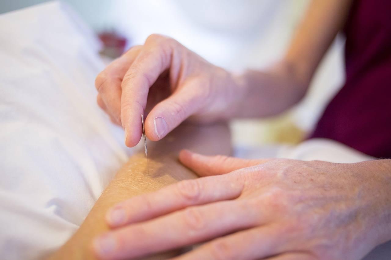 针灸疗法登国际期刊,哈佛研究者证实针灸可通过特定神经减轻炎症  针灸止疼能管多长时间