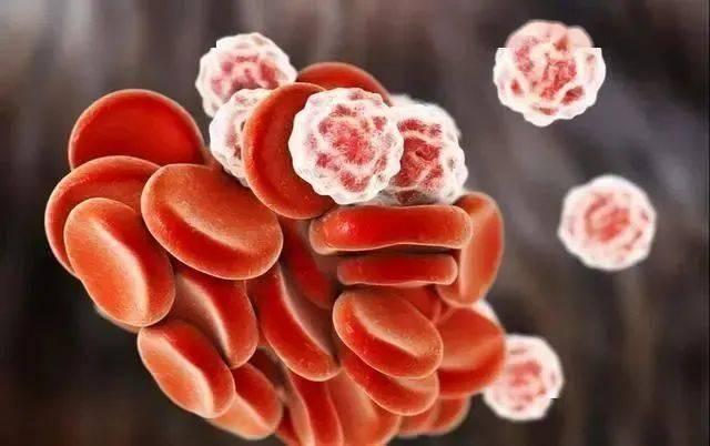 """血液变得粘稠,身体会发出4个""""信号"""",若没有,血管还算畅通"""