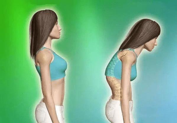 4个简单动作,改善驼背含胸以及颈前倾,帮助塑造完美体态_进行