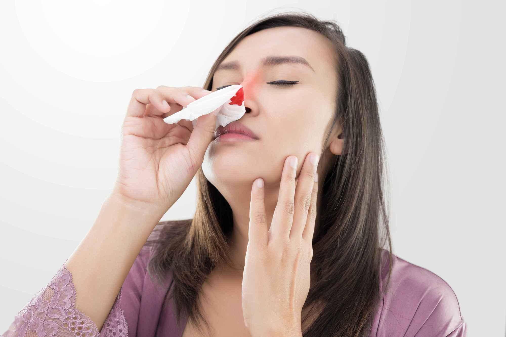 鼻,为胃之窍!少年鼻子爱出血,用清胃火的方子治好,请你体会  一种草药可以治流鼻血