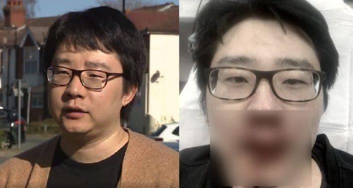 """中国教师在英国遭围殴致面部受伤严重:""""不再觉得这里安全"""""""